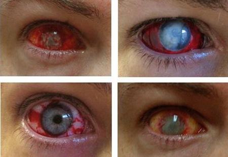 Eye-Trauma-Contact-Lenses