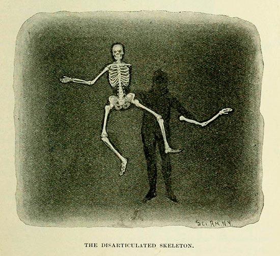 The_Disarticulated_Skeleton_Vintage_Magic_Trick